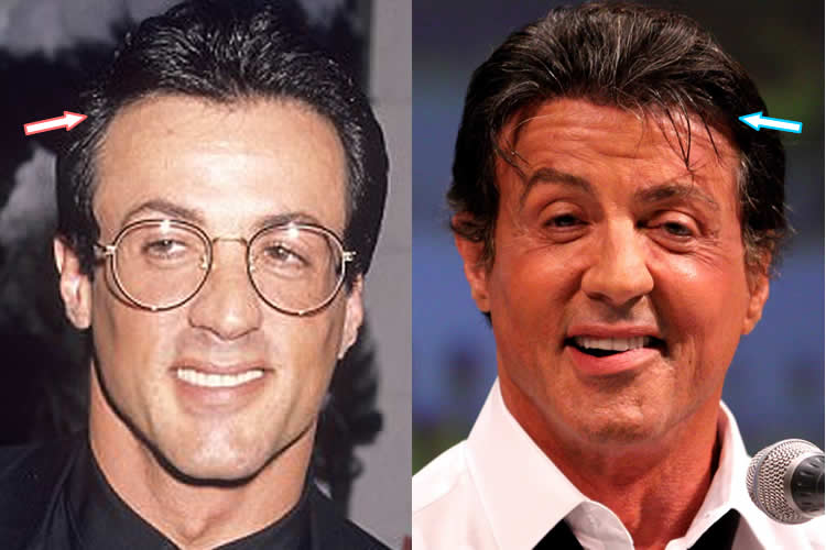 Sylvester Stallone hair before and after