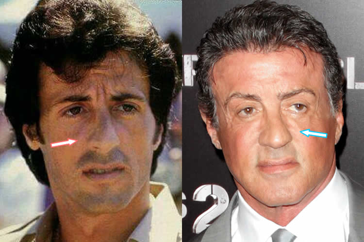 Has Sylvester Stallone has a nose job?