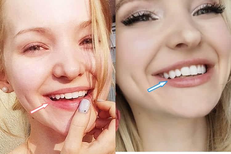 Dove Cameron's teeth