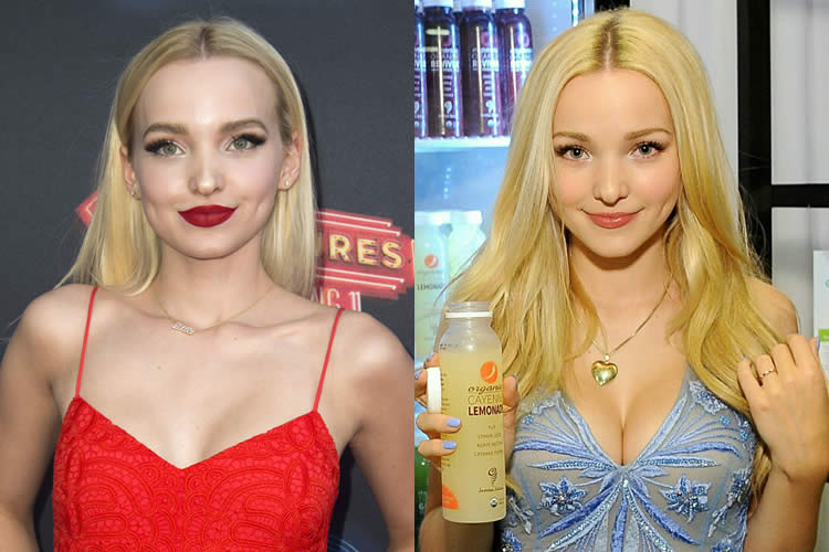 Has Dove Cameron Had a Boob Job?