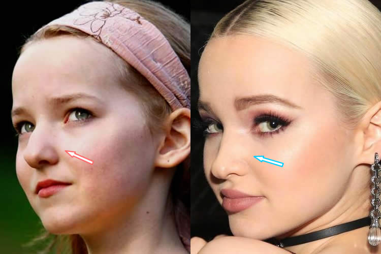 Did Dove Cameron Have A Nose Job?