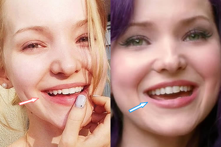 Dove Cameron's Teeth