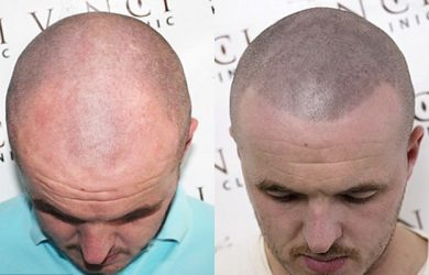 Bald Hair Tattoo Before and After