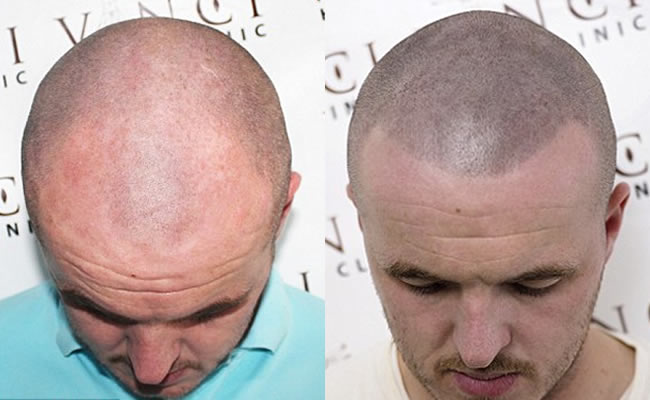 Bald scalp hair loss problem solved by hair tattoo for Tattoo under hairline