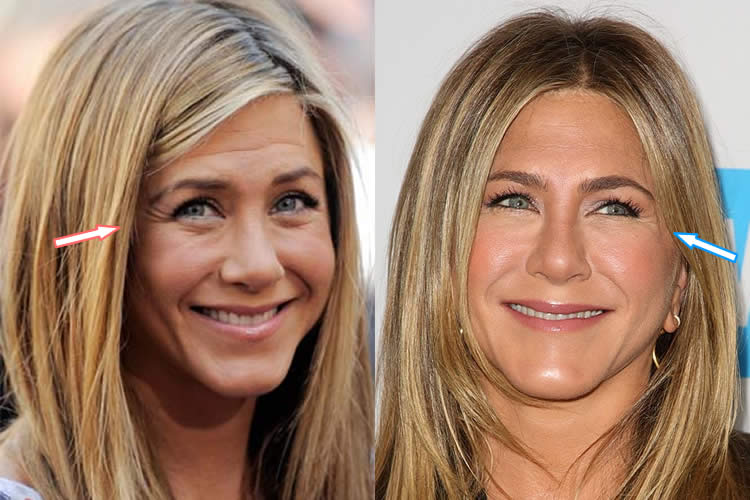 Does Jennifer Aniston Use Botox?