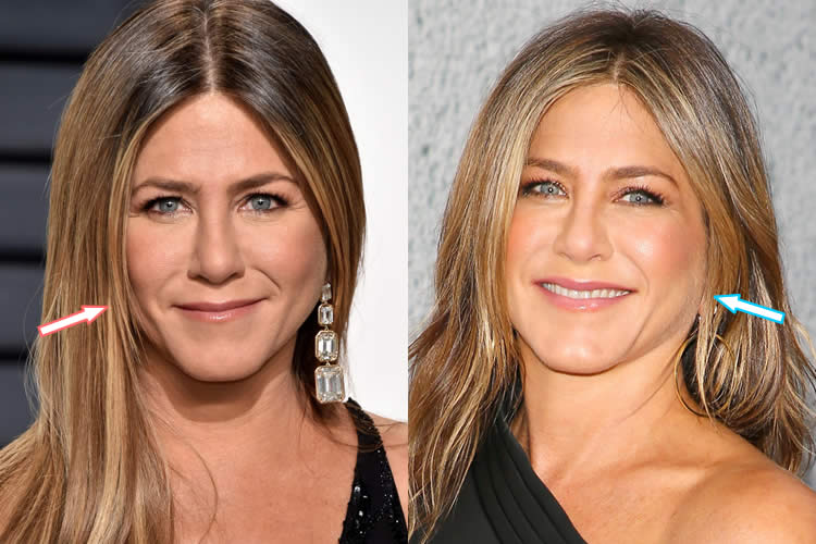Did Jennifer Aniston Have A Facelift?