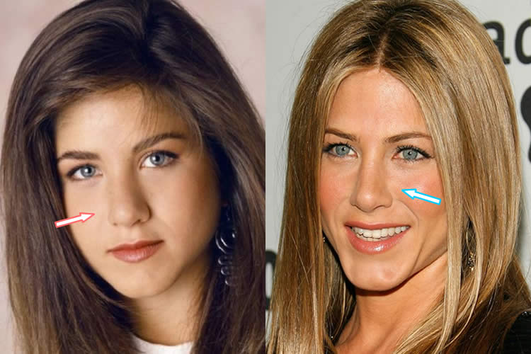 Did Jennifer Aniston Have A Nose Job?