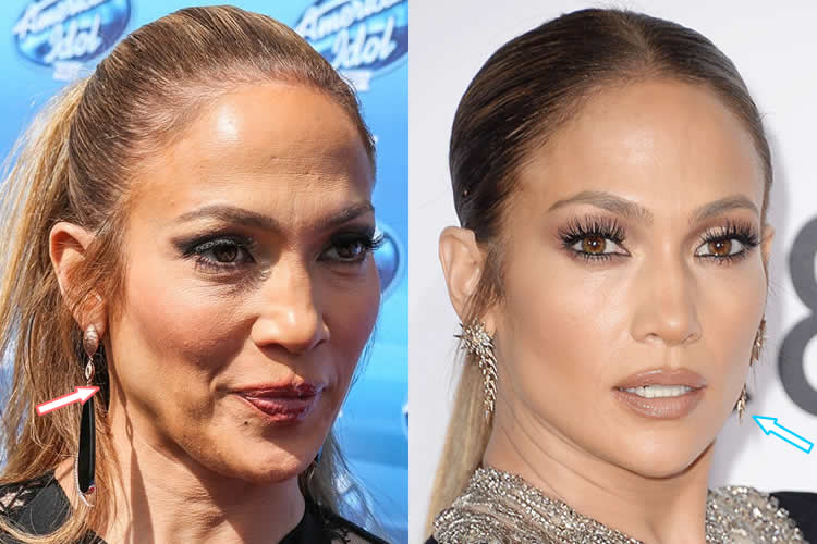 Does Jennifer Lopez Have Botox?