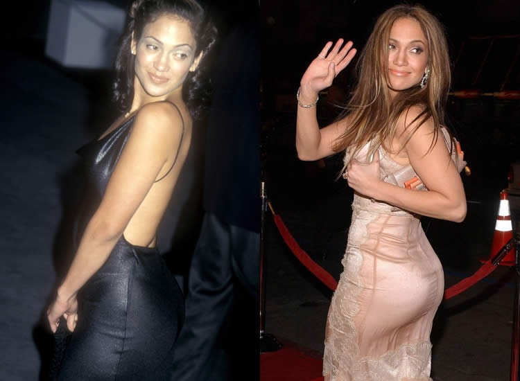 Did Jennifer Lopez Have Butt Implants?
