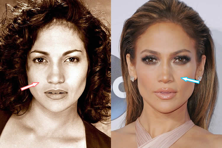 Did Jennifer Lopez Have A Nose Job?