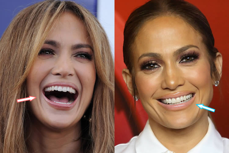 Jennifer Lopez's Teeth