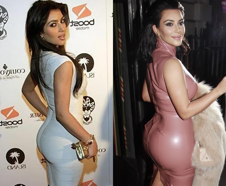 Does Kim Kardashian Have Butt Implants?