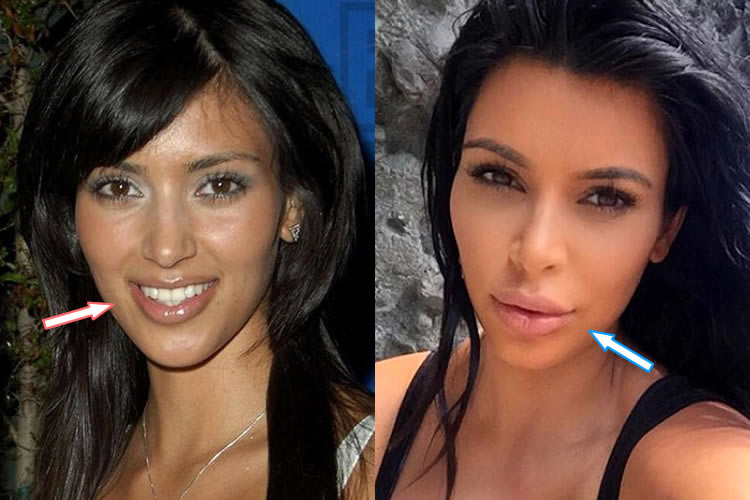Does Kim Kardashian Have Lip Injections?