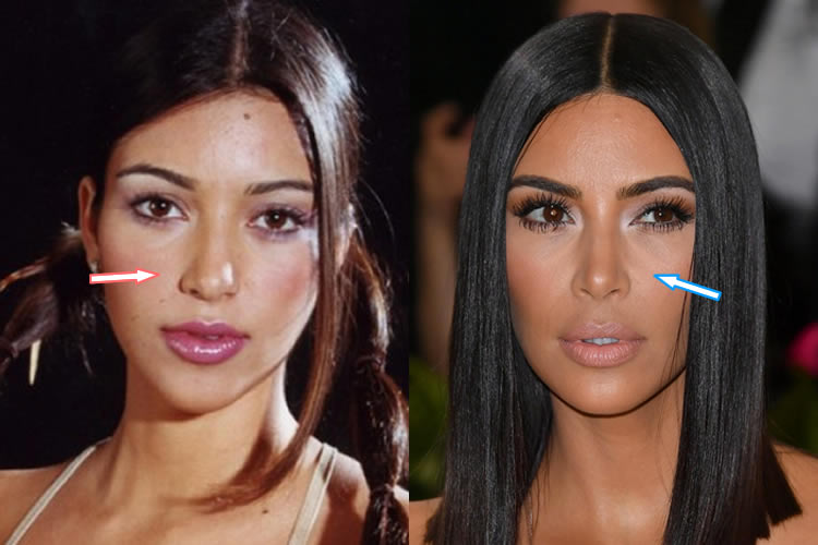 Did Kim Kardashian Have A Nose Job?