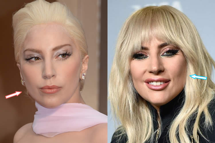 Has Lady Gaga Had Botox Injections?