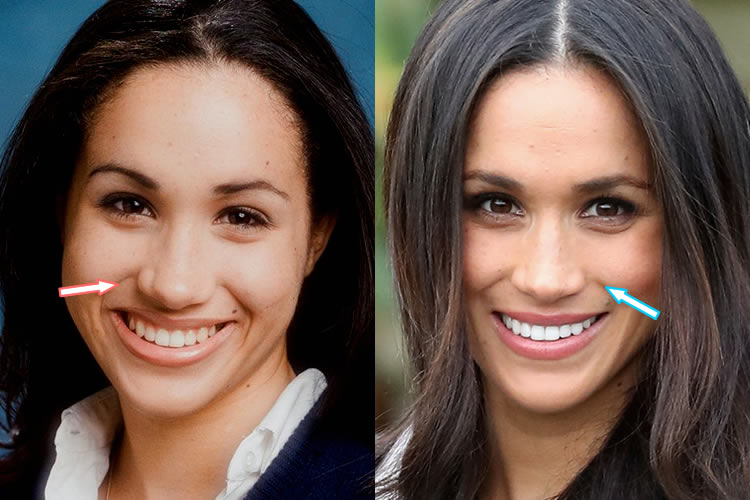 Has Meghan Markle Had A Nose Job?