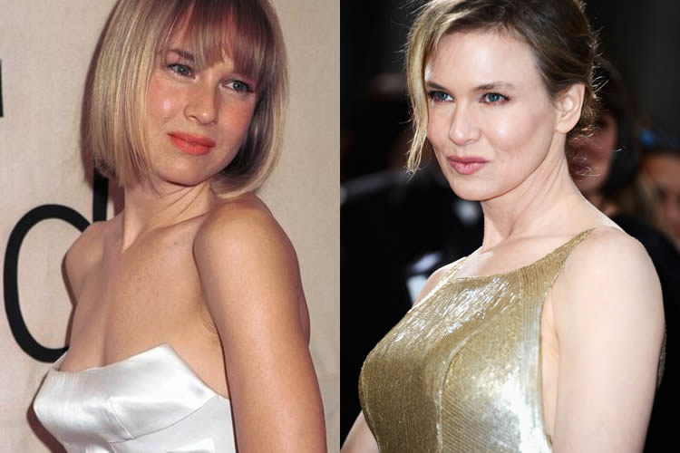 Does Renee Zellweger Have A Boob Job?