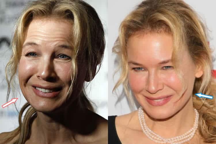Has Renee Zellweger Had Botox Fillers?