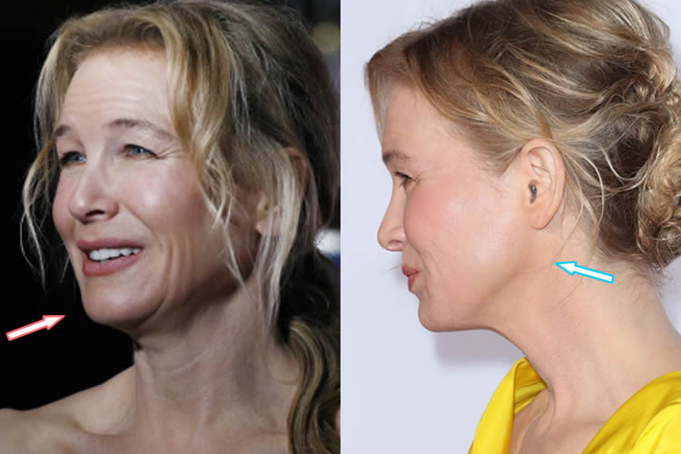 Did Renee Zellweger Have A Facelift?