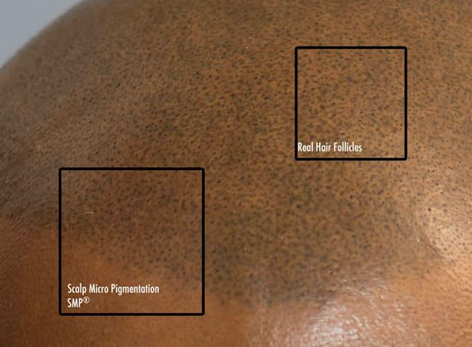 Scalp Mircopigmentation Tattoo