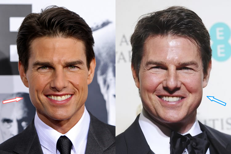 Did Tom Cruise Have Plastic Surgery Before Amp After Photos