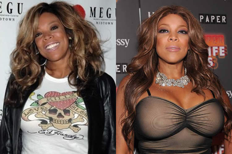 Did Wendy Williams Have A Boob Job?