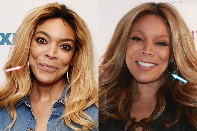 Did Wendy Williams Get A Facelift?