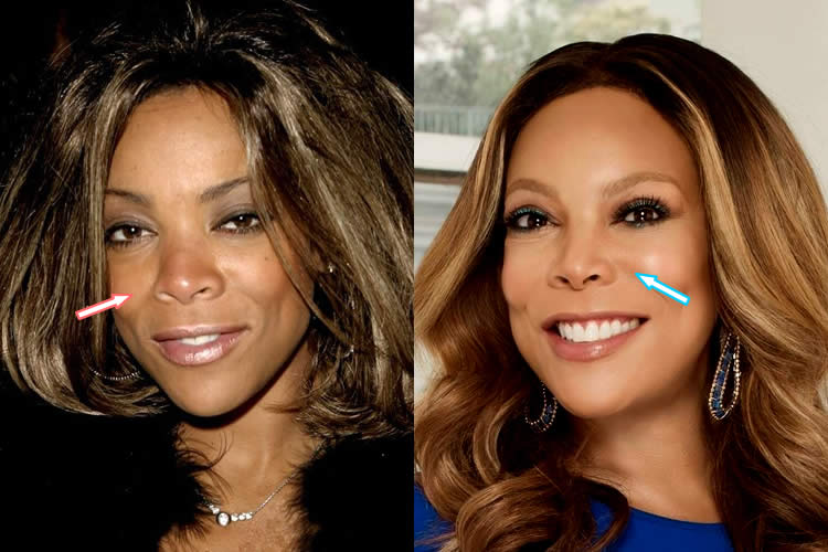 Did Wendy Williams Have A Nose Job?