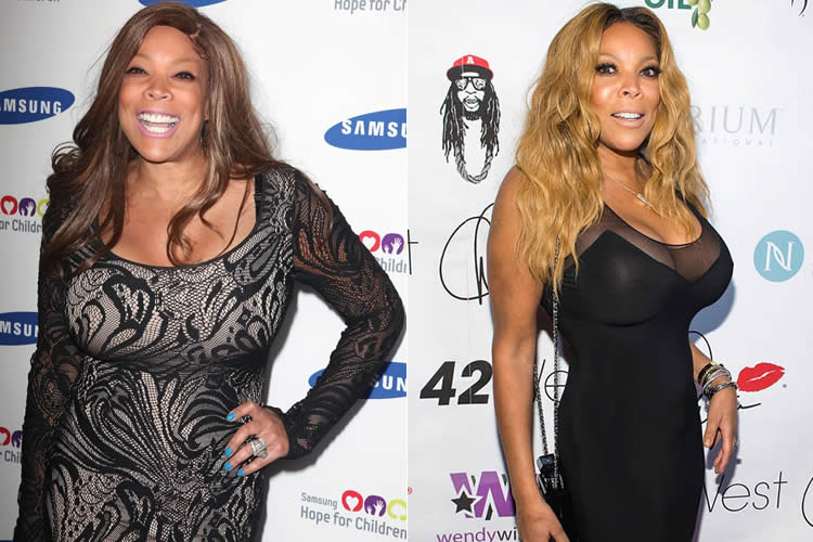 Did Wendy Williams Get Tummy Tuck & Liposuction?