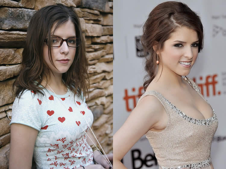 Has Anna Kendrick Had A Boob Job?