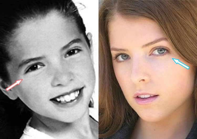 Does Anna Kendrick Have Work On Her Eyes?