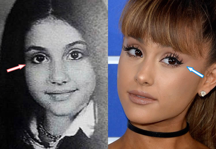 Did Ariana Have Eye Surgery?
