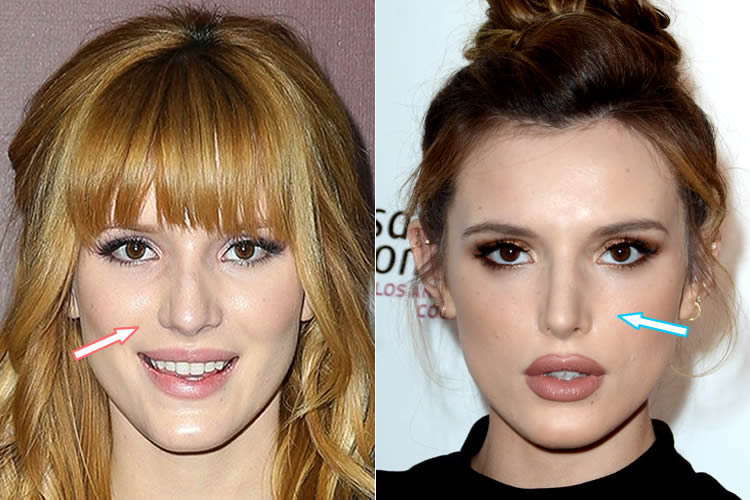 Has Bella Thorne Had A Nose Job?