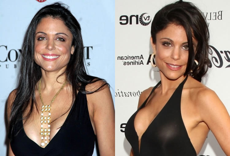 Has Bethenny Frankel Had A Boob Job?