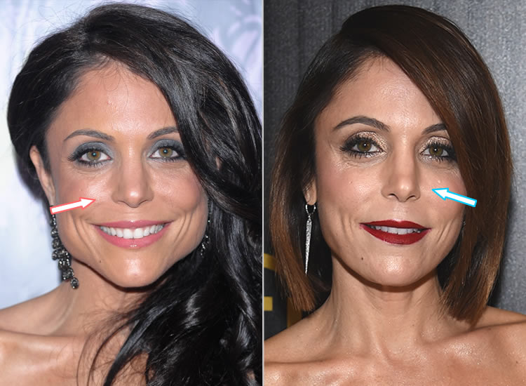 Does Bethenny Frankel Have A Nose Job?