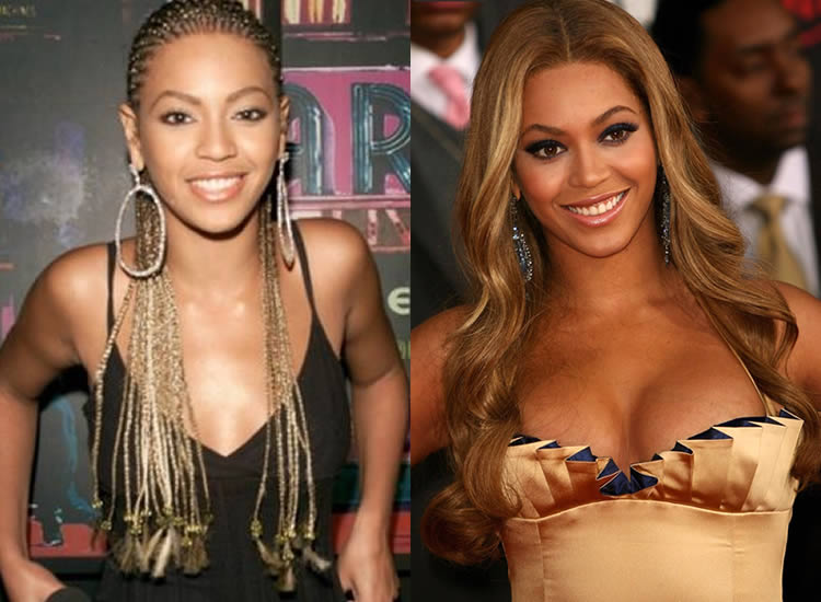 Did Beyonce Have Boob Job?