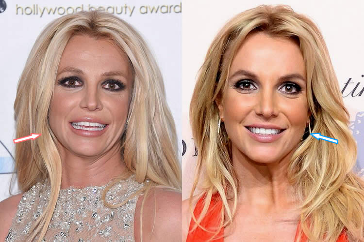 Did Britney Spears Have Facelift & Botox On Her Face?