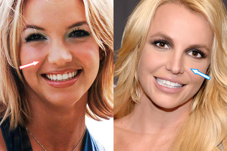 Has Britney Spears Had A Nose Job?