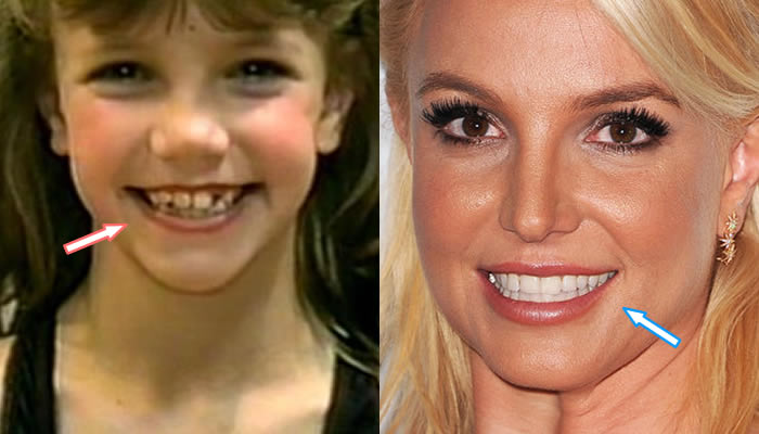 Did Britney Spears Have Cosmetic Surgery? (Before & After