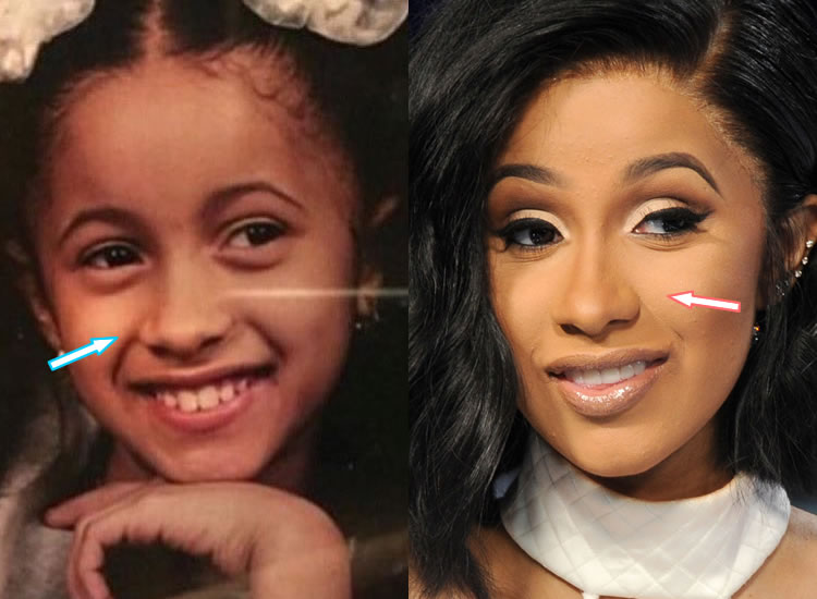 Does Cardi B Have Nose Job?