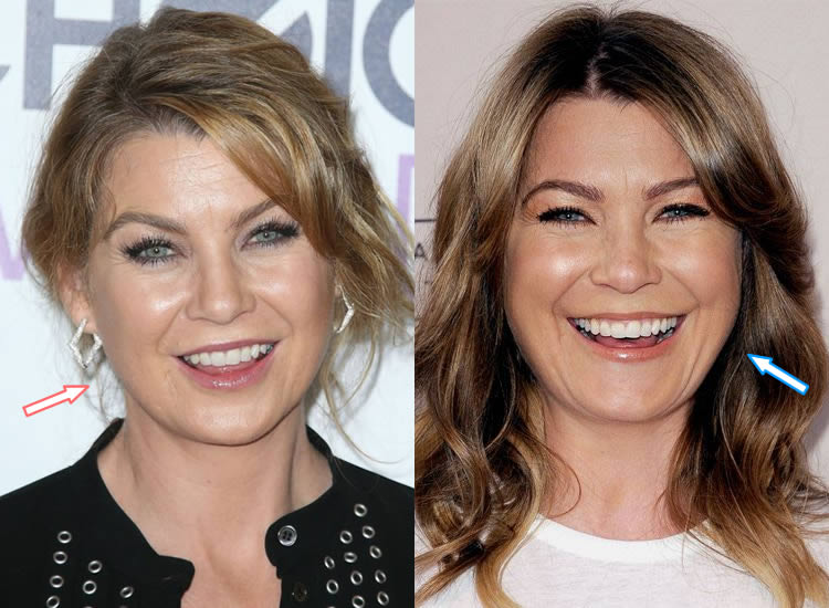 Did Ellen Pompeo Have Botox?