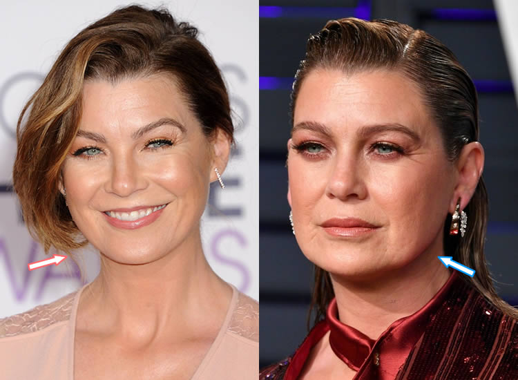 Has Ellen Pompeo had a facelift?