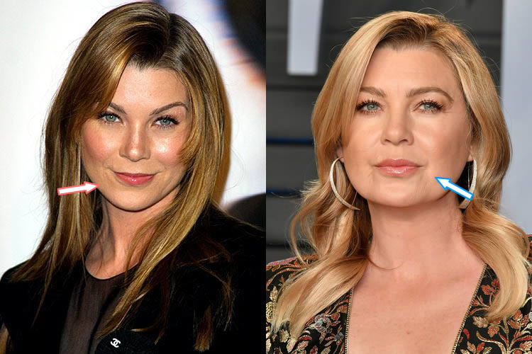Did Ellen Pompeo Get Lip Injections?