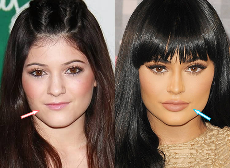 Has Kylie Jenner Had Lip Injections?