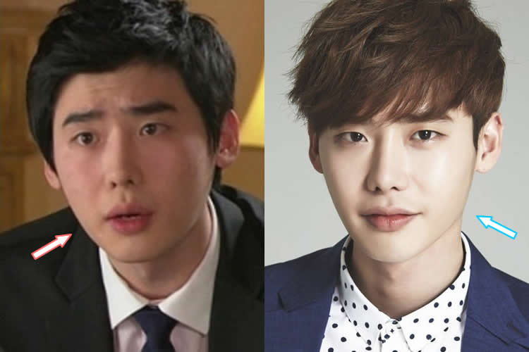 Did Lee Jong Suk Get Jaw Surgery?
