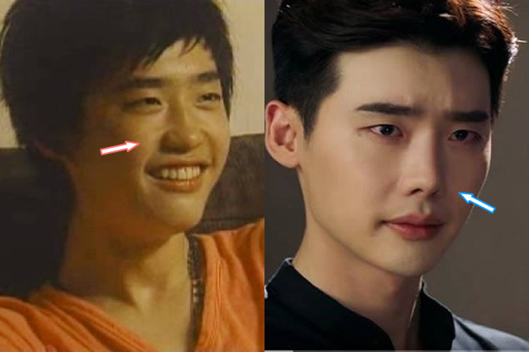 Did Lee Jong Suk Have A Nose Job?