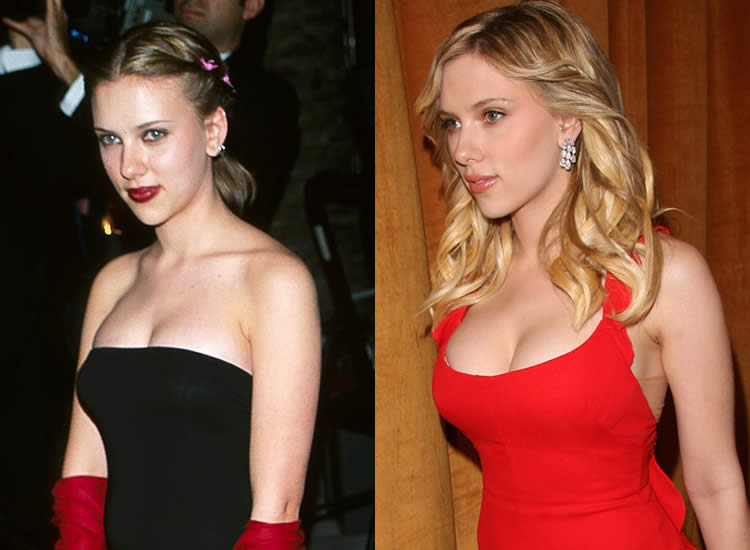 Does Scarlett Johansson Have Breast Implants?