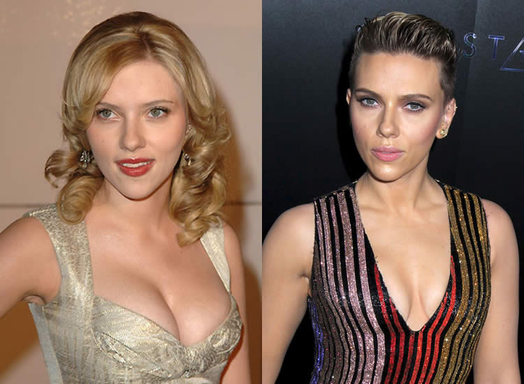Has Scarlett Johansson Have Breast Reduction Surgery?