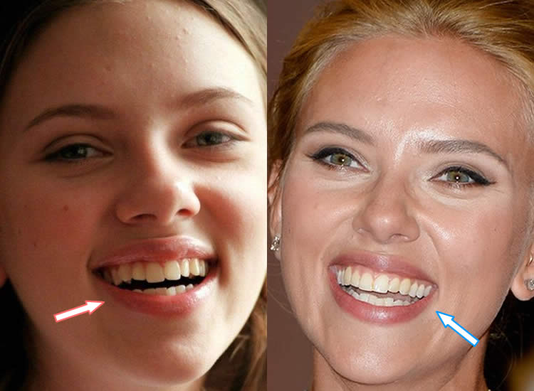 Did Scarlett Johansson Fix Her Teeth?