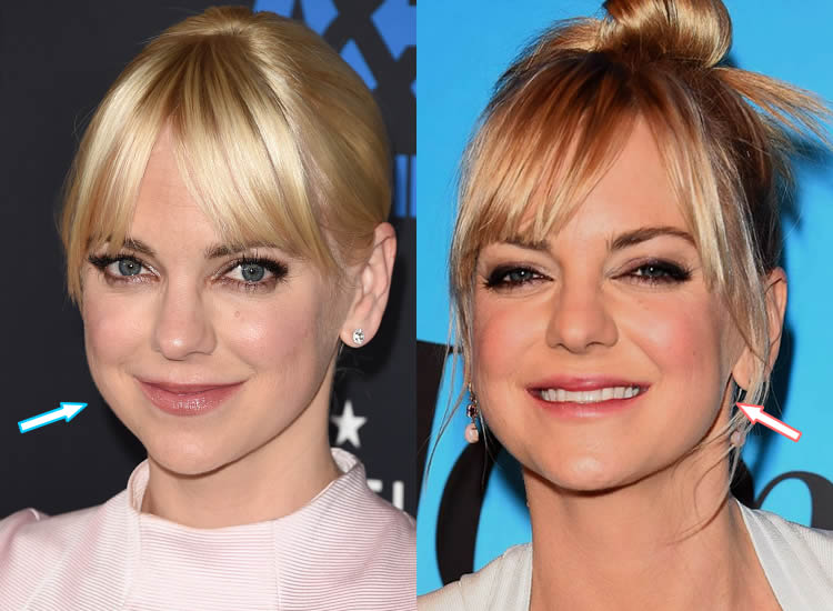 Did Anna Faris Have Botox or Facelift?